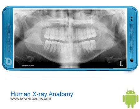 https://img5.downloadha.com/AliRe/1394/03/Pic/Human-X-ray-Anatomy.jpg