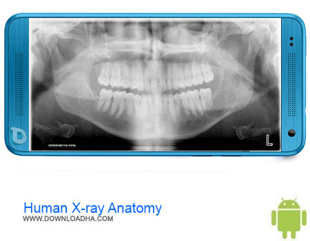 http://img5.downloadha.com/AliRe/1394/03/Pic/Human-X-ray-Anatomy.jpg